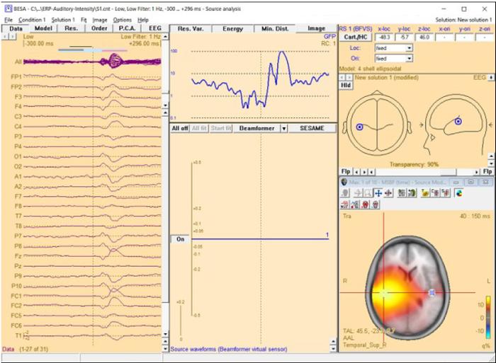 Source Analysis 3D Imaging - BESA® Wiki